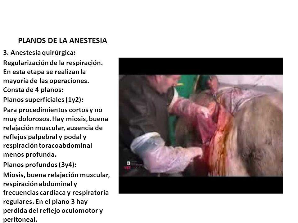 PLANOS DE LA ANESTESIA 3. Anestesia quirúrgica: