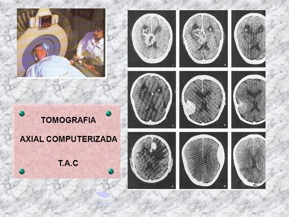 TOMOGRAFIA AXIAL COMPUTERIZADA T.A.C 