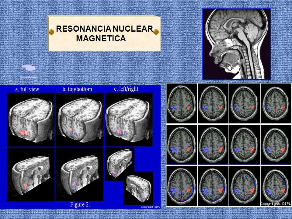 RESONANCIA NUCLEAR MAGNETICA 