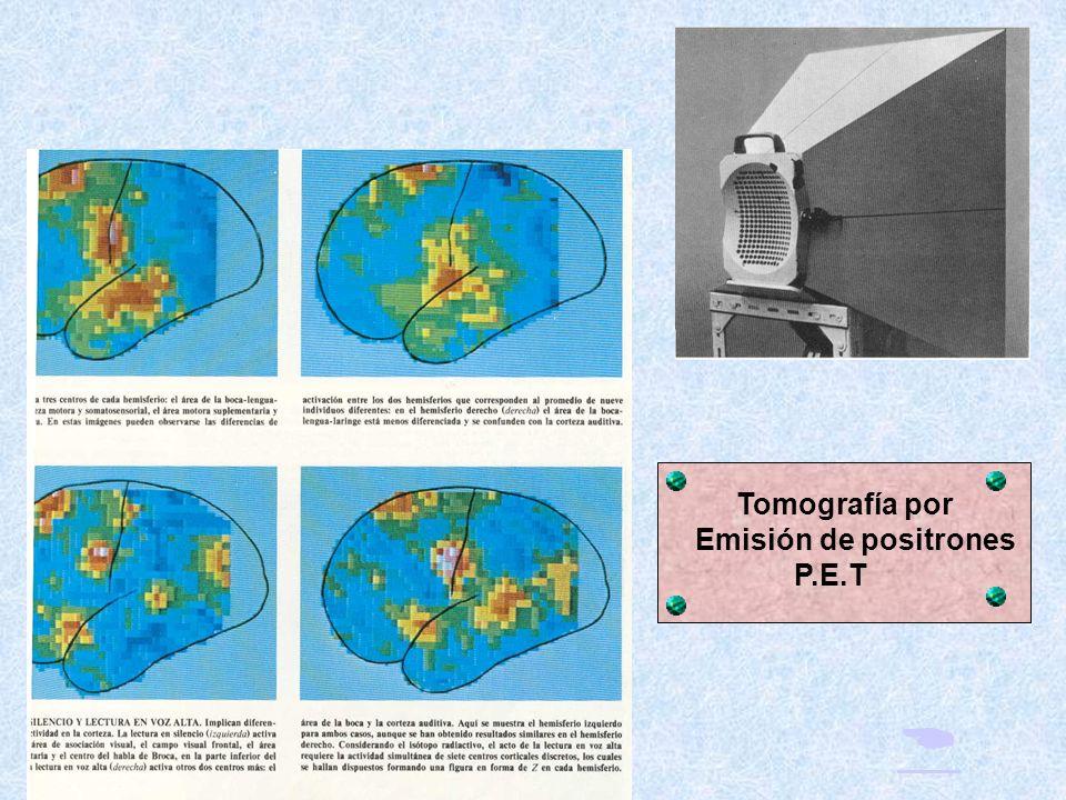 Tomografía por Emisión de positrones P.E.T 