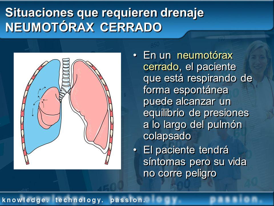Situaciones que requieren drenaje NEUMOTÓRAX CERRADO