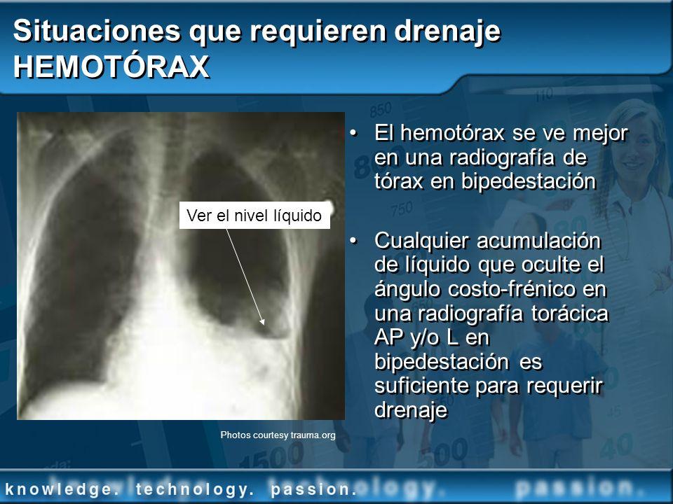 Situaciones que requieren drenaje HEMOTÓRAX
