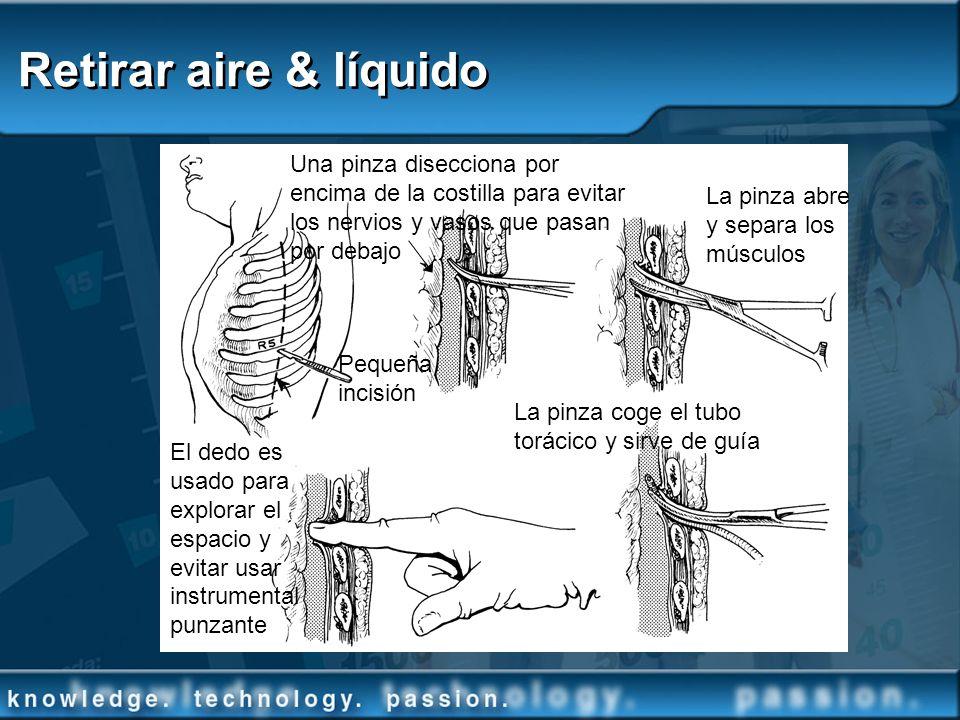 Retirar aire & líquido Una pinza disecciona por encima de la costilla para evitar los nervios y vasos que pasan por debajo.