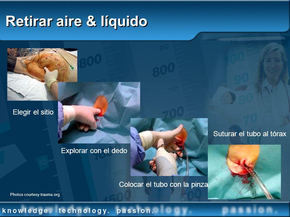 Retirar aire & líquido Elegir el sitio Suturar el tubo al tórax