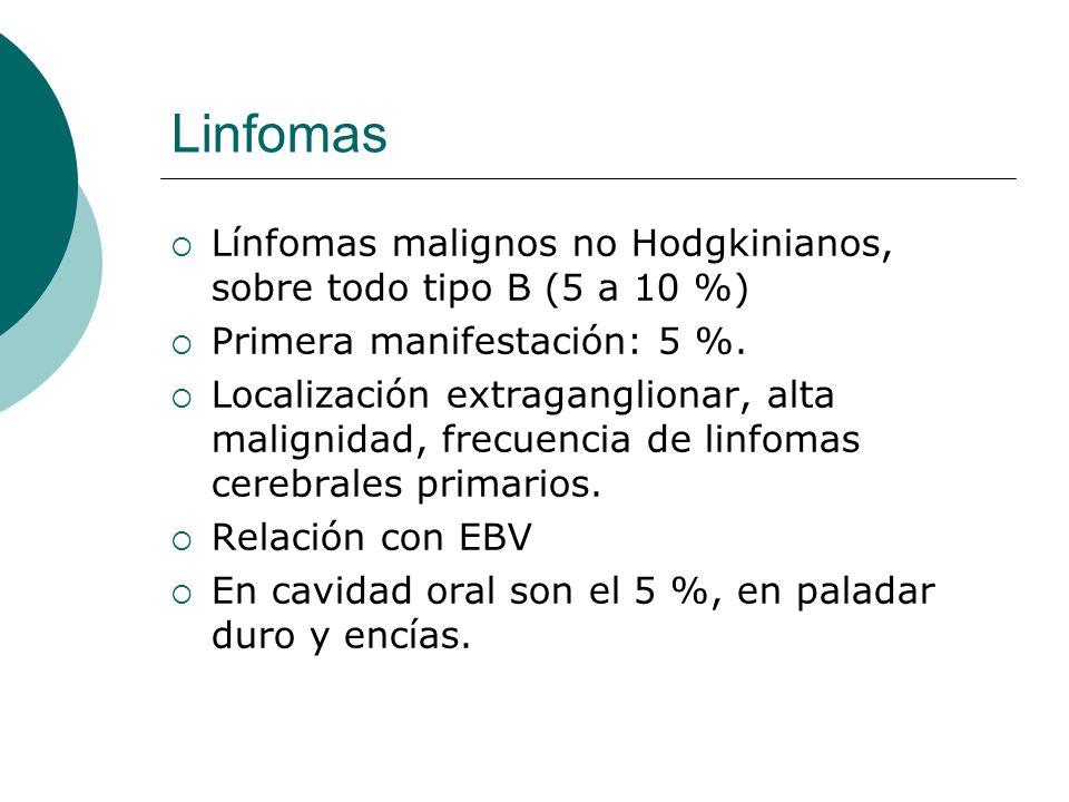 Linfomas Línfomas malignos no Hodgkinianos, sobre todo tipo B (5 a 10 %) Primera manifestación: 5 %.