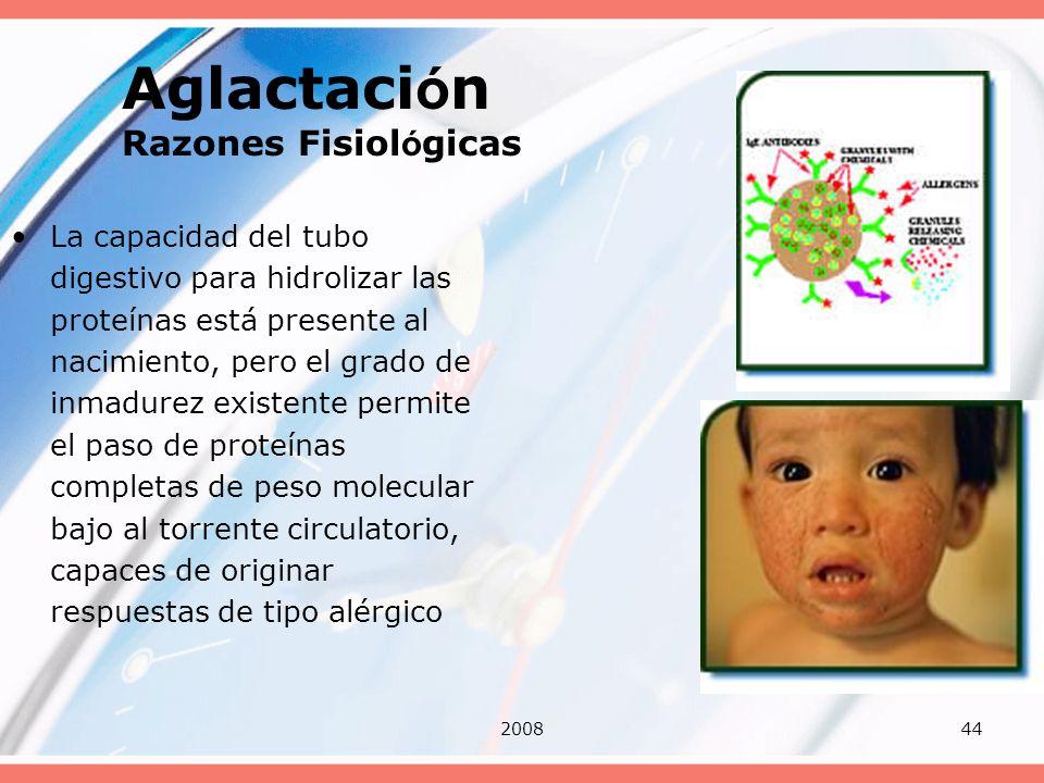 Aglactación Razones Fisiológicas