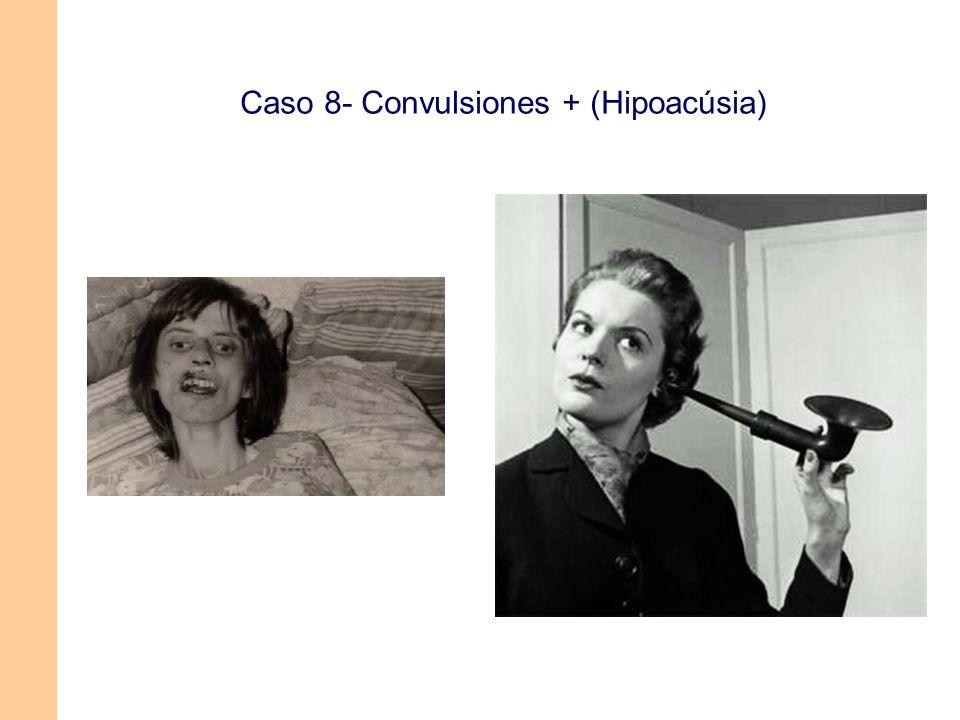 Caso 8- Convulsiones + (Hipoacúsia)
