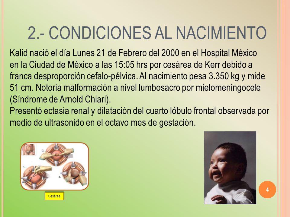 2.- CONDICIONES AL NACIMIENTO