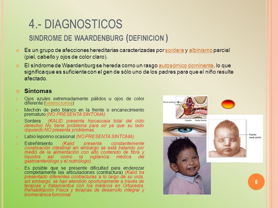 4.- diagnosticos sindrome de waardenburg (definicion )