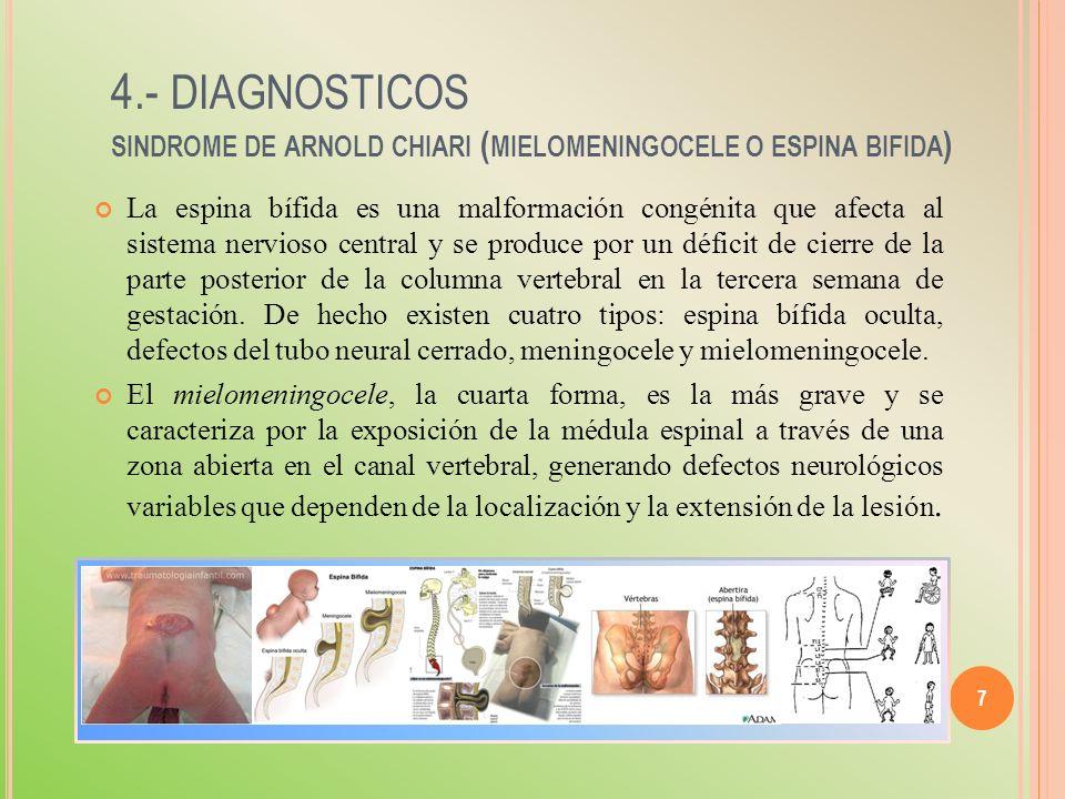4.- diagnosticos sindrome de arnold chiari (mielomeningocele o espina bifida)