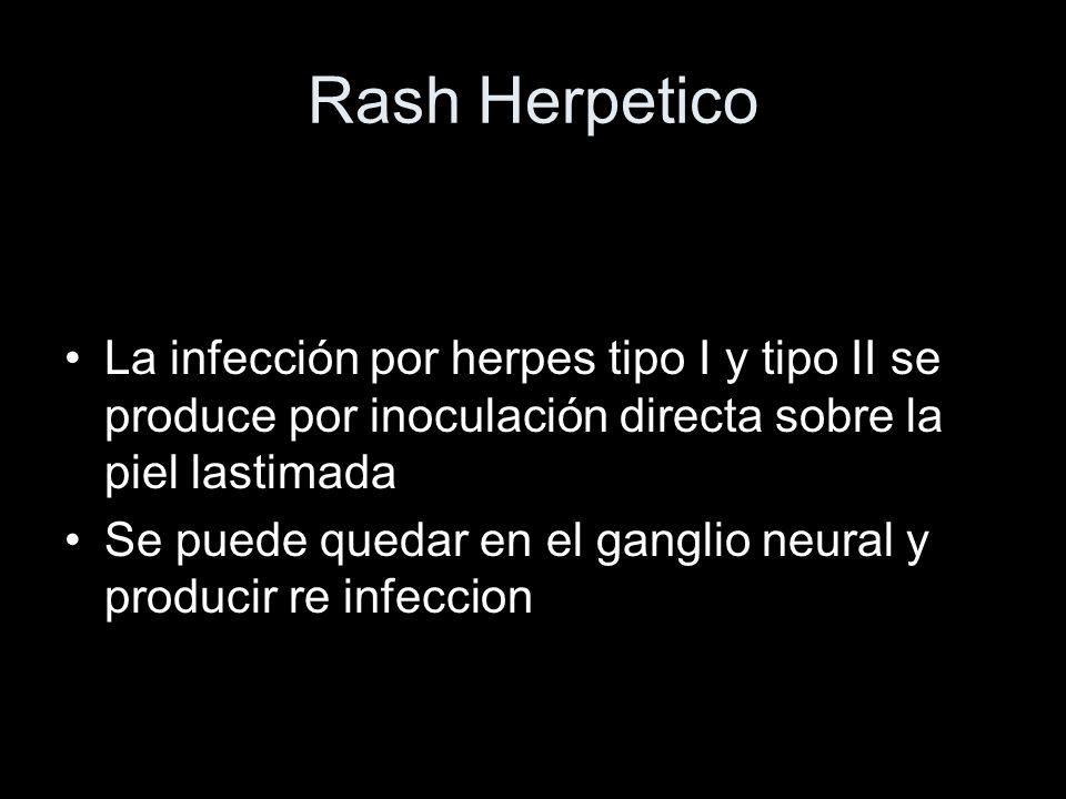 Rash Herpetico La infección por herpes tipo I y tipo II se produce por inoculación directa sobre la piel lastimada.