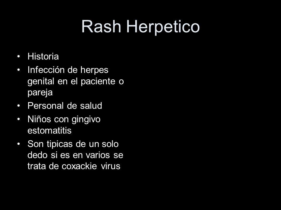 Rash Herpetico Historia