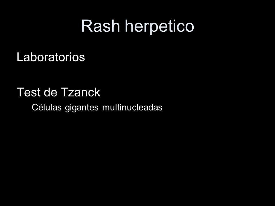 Rash herpetico Laboratorios Test de Tzanck