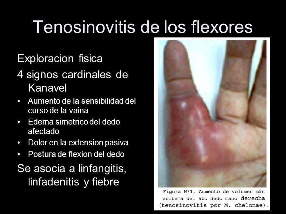 Tenosinovitis de los flexores