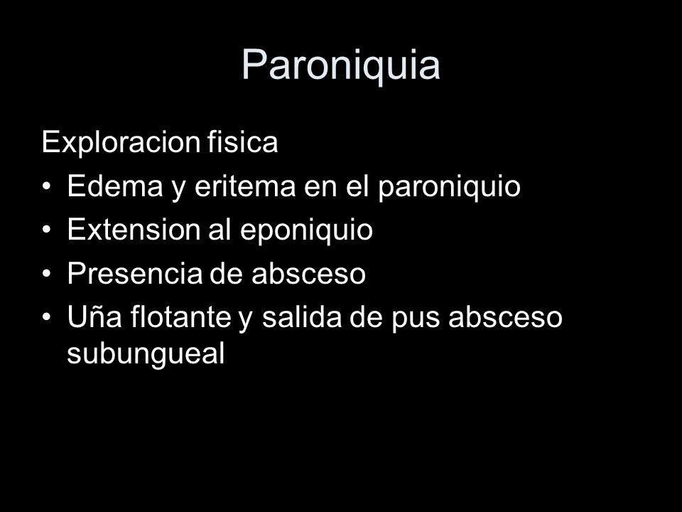 Paroniquia Exploracion fisica Edema y eritema en el paroniquio