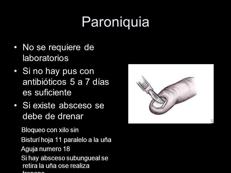 Paroniquia No se requiere de laboratorios