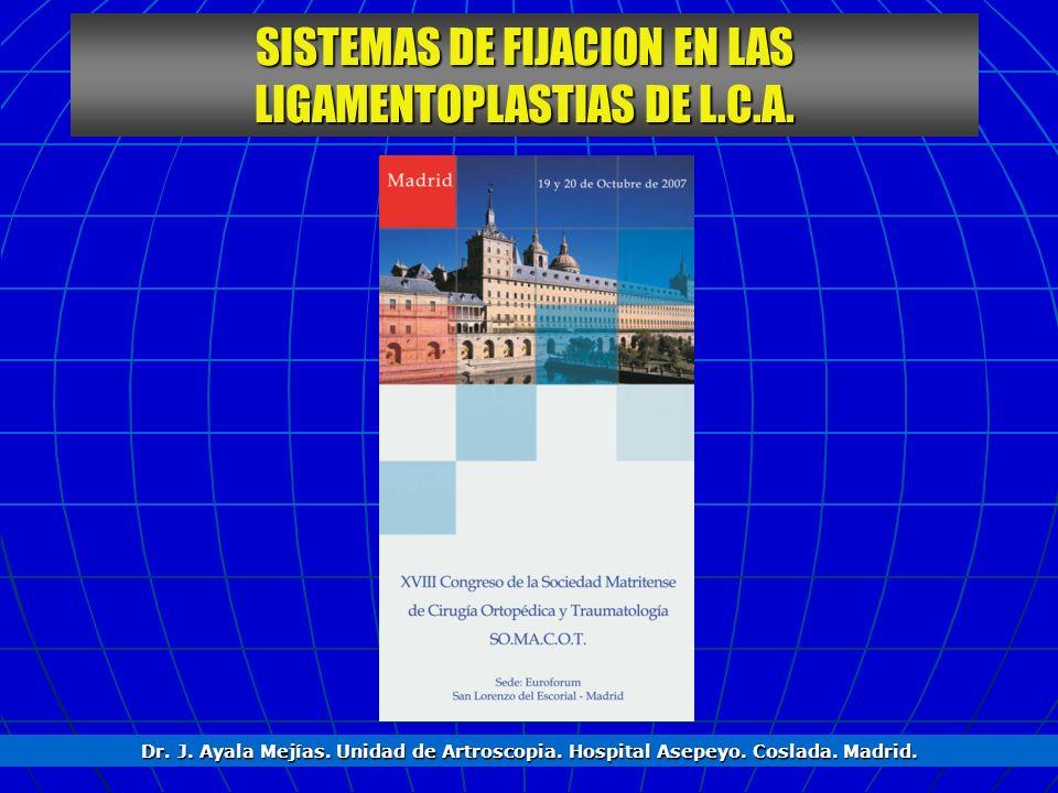 SISTEMAS DE FIJACION EN LAS LIGAMENTOPLASTIAS DE L.C.A.