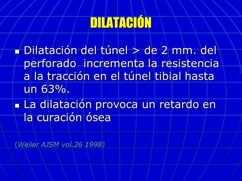 DILATACIÓN Dilatación del túnel > de 2 mm. del perforado incrementa la resistencia a la tracción en el túnel tibial hasta un 63%.