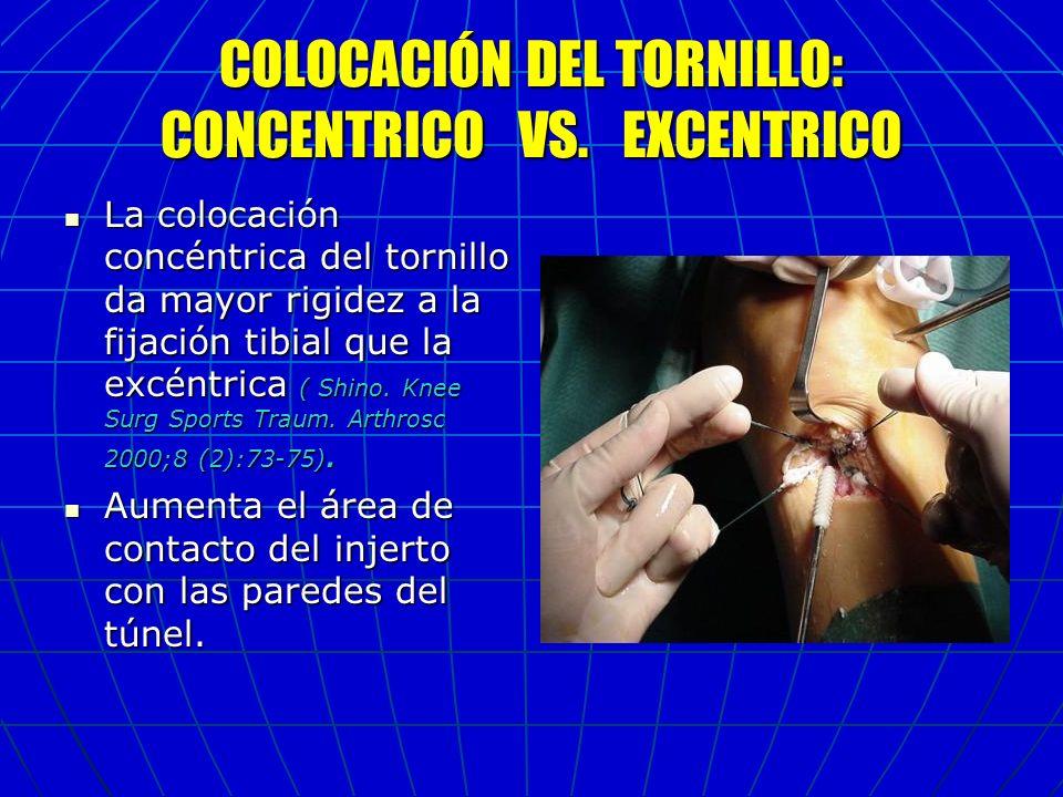COLOCACIÓN DEL TORNILLO: CONCENTRICO VS. EXCENTRICO