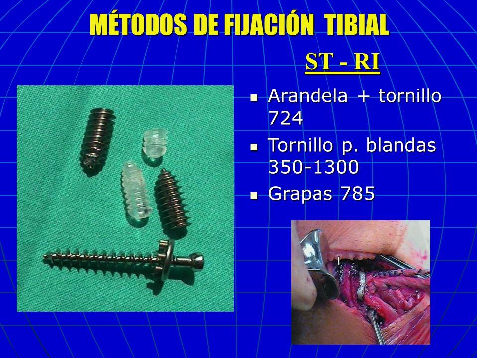 MÉTODOS DE FIJACIÓN TIBIAL