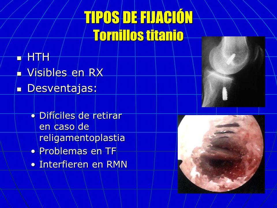 TIPOS DE FIJACIÓN Tornillos titanio