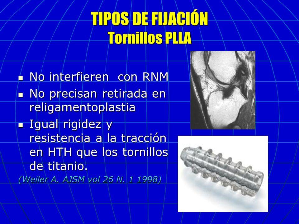 TIPOS DE FIJACIÓN Tornillos PLLA