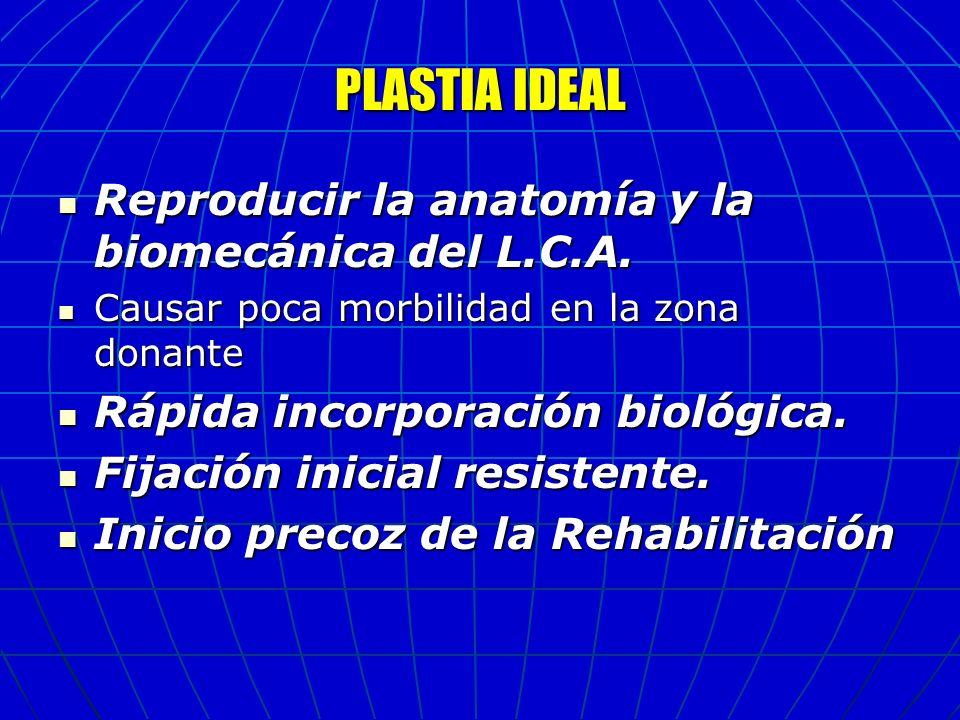 PLASTIA IDEAL Reproducir la anatomía y la biomecánica del L.C.A.