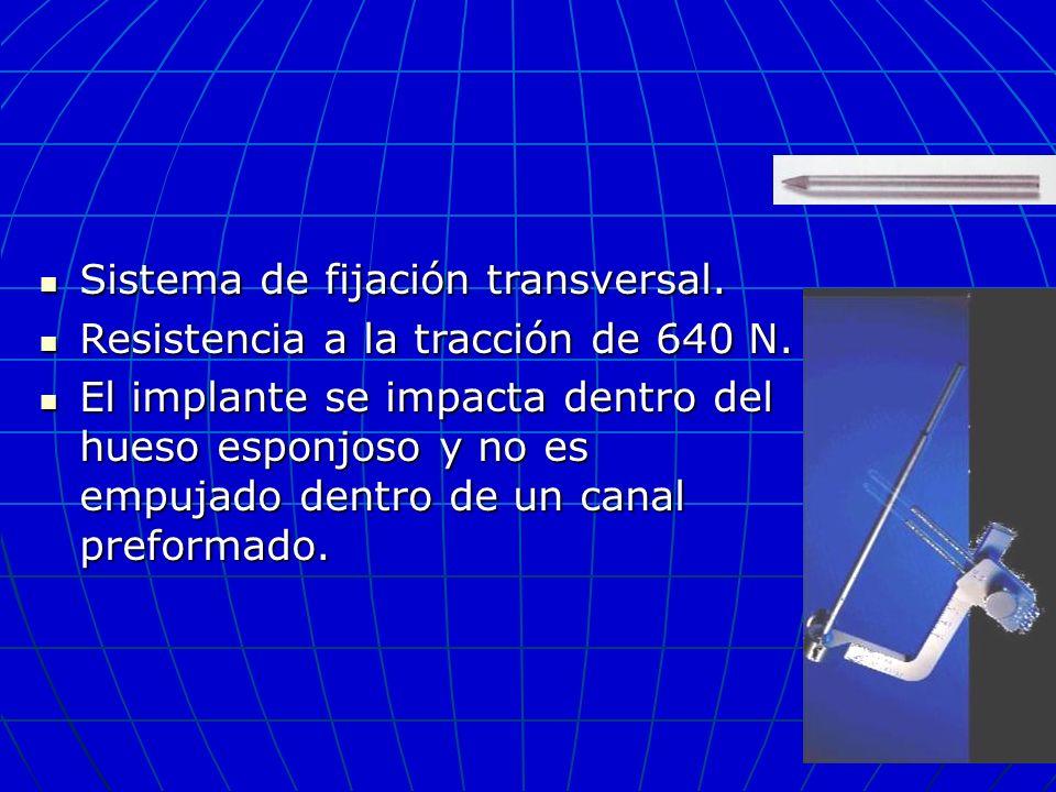 Sistema de fijación transversal.