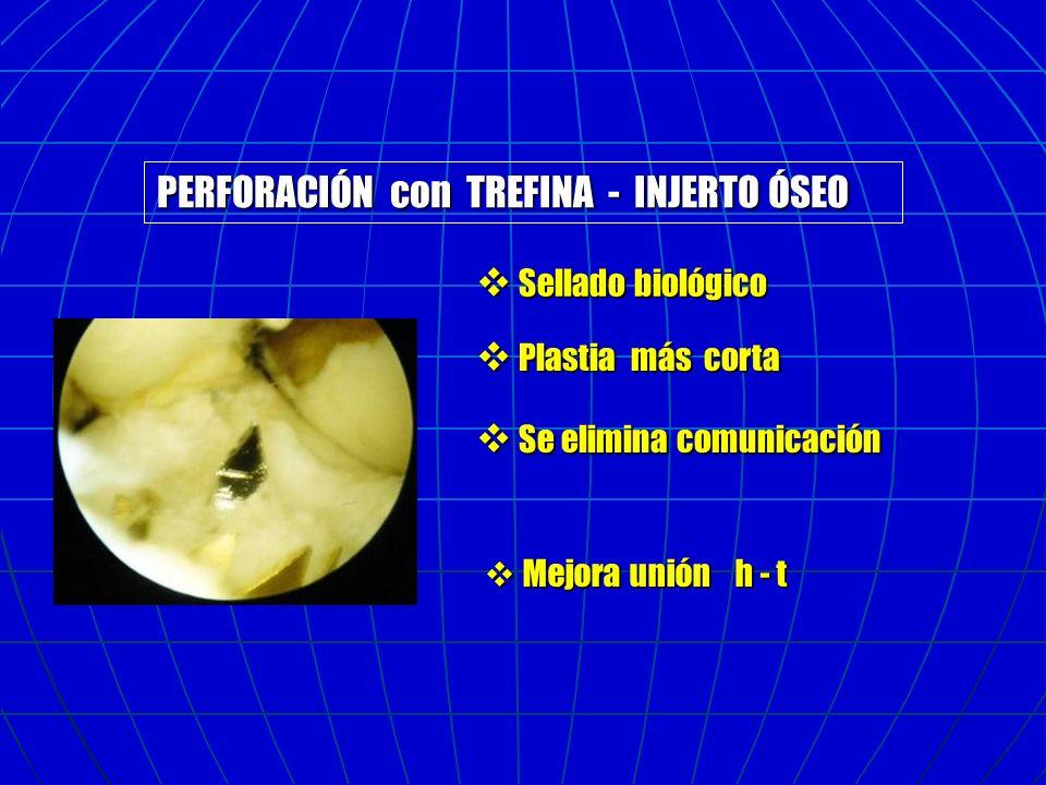 PERFORACIÓN con TREFINA - INJERTO ÓSEO