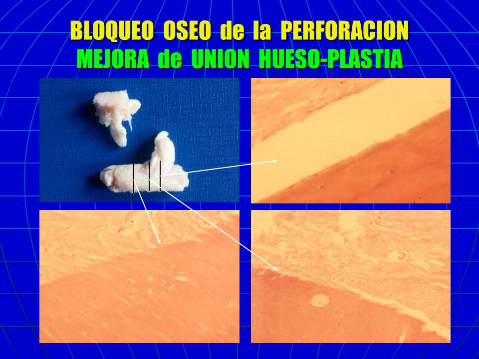 BLOQUEO OSEO de la PERFORACION MEJORA de UNION HUESO-PLASTIA
