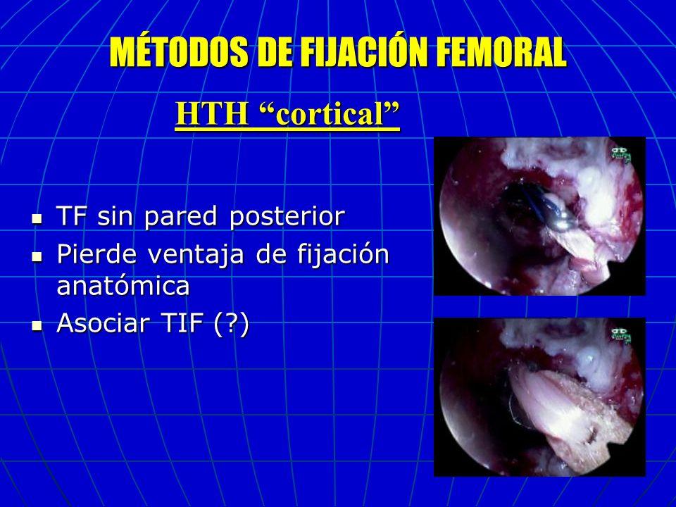 MÉTODOS DE FIJACIÓN FEMORAL
