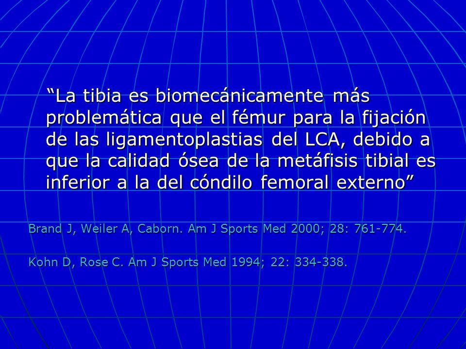 La tibia es biomecánicamente más problemática que el fémur para la fijación de las ligamentoplastias del LCA, debido a que la calidad ósea de la metáfisis tibial es inferior a la del cóndilo femoral externo