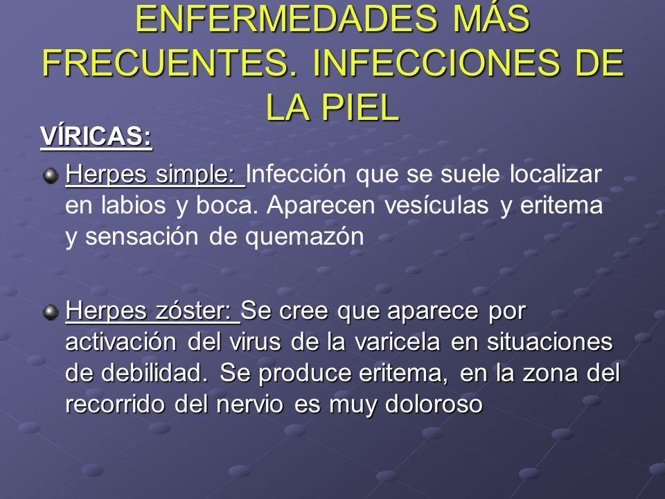 ENFERMEDADES MÁS FRECUENTES. INFECCIONES DE LA PIEL