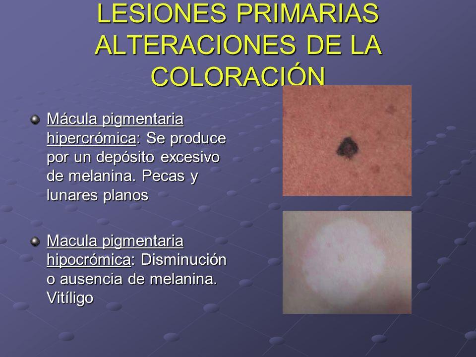 LESIONES PRIMARIAS ALTERACIONES DE LA COLORACIÓN