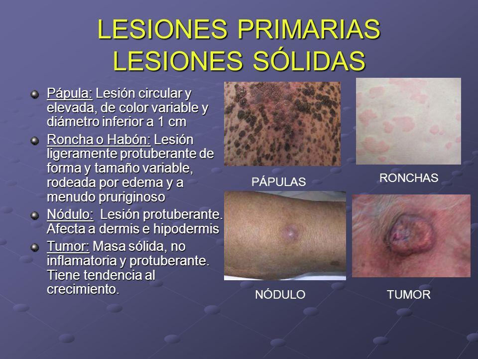 LESIONES PRIMARIAS LESIONES SÓLIDAS