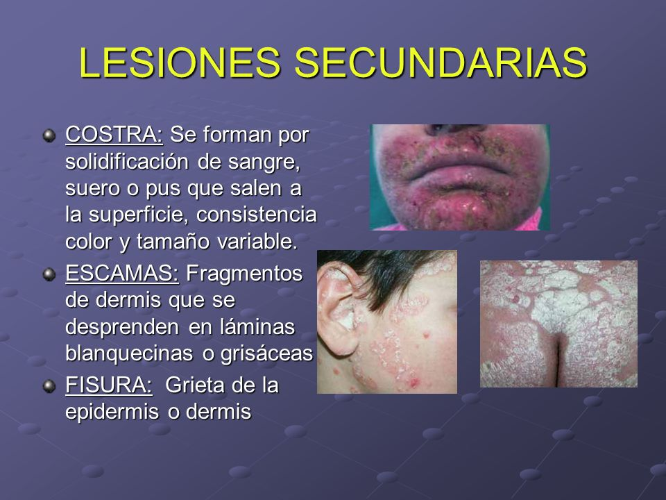 LESIONES SECUNDARIAS COSTRA: Se forman por solidificación de sangre, suero o pus que salen a la superficie, consistencia color y tamaño variable.