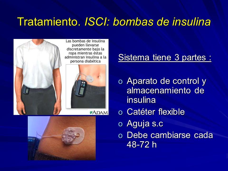 Tratamiento. ISCI: bombas de insulina