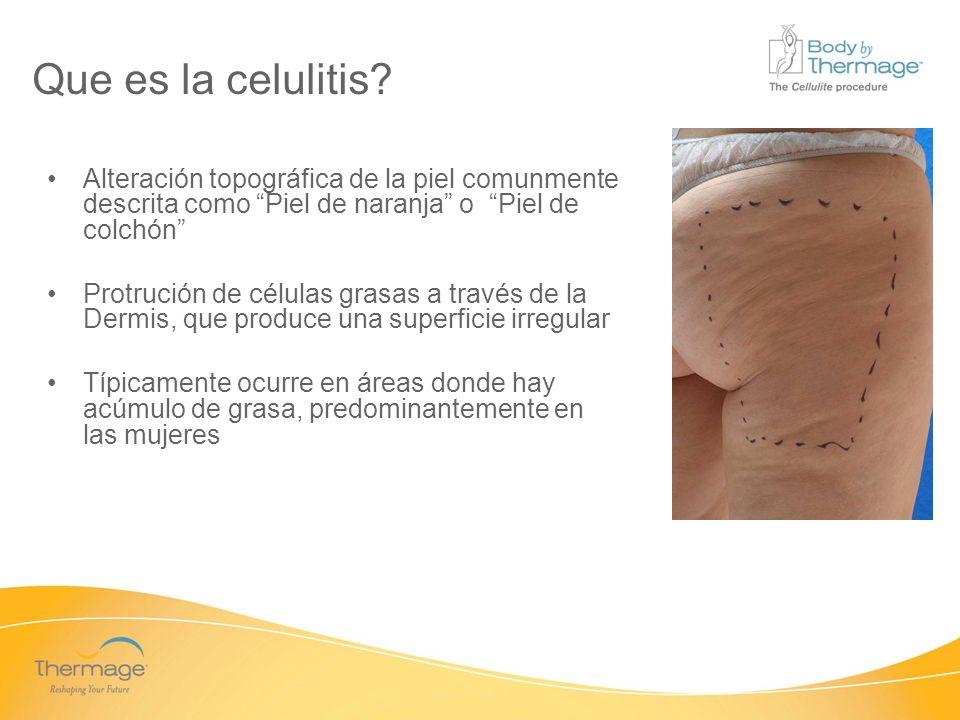 Que es la celulitis Alteración topográfica de la piel comunmente descrita como Piel de naranja o Piel de colchón