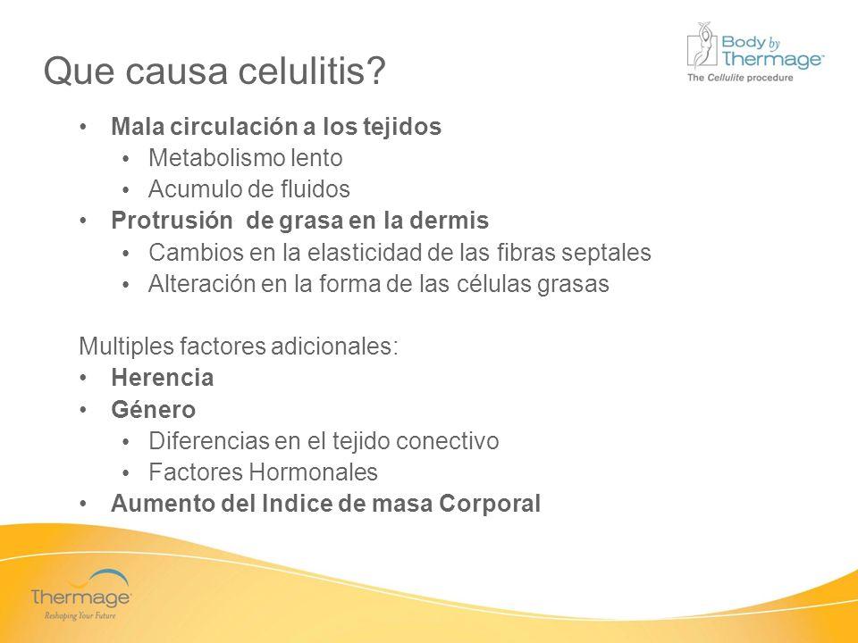 Que causa celulitis Mala circulación a los tejidos Metabolismo lento