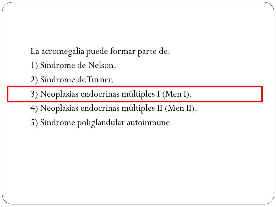La acromegalia puede formar parte de: 1) Síndrome de Nelson