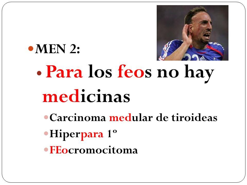 MEN 2: Para los feos no hay medicinas Carcinoma medular de tiroideas