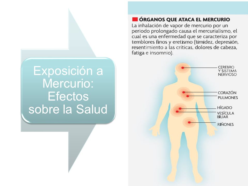 Exposición a Mercurio: Efectos sobre la Salud