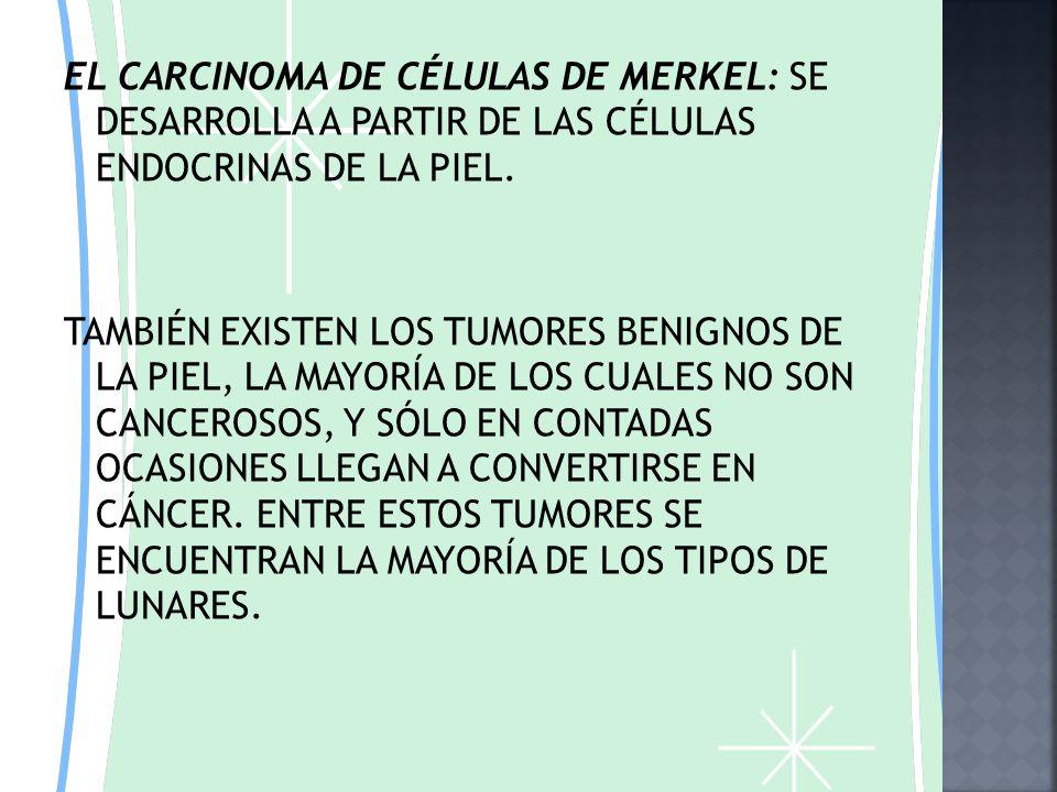 EL CARCINOMA DE CÉLULAS DE MERKEL: SE DESARROLLA A PARTIR DE LAS CÉLULAS ENDOCRINAS DE LA PIEL.