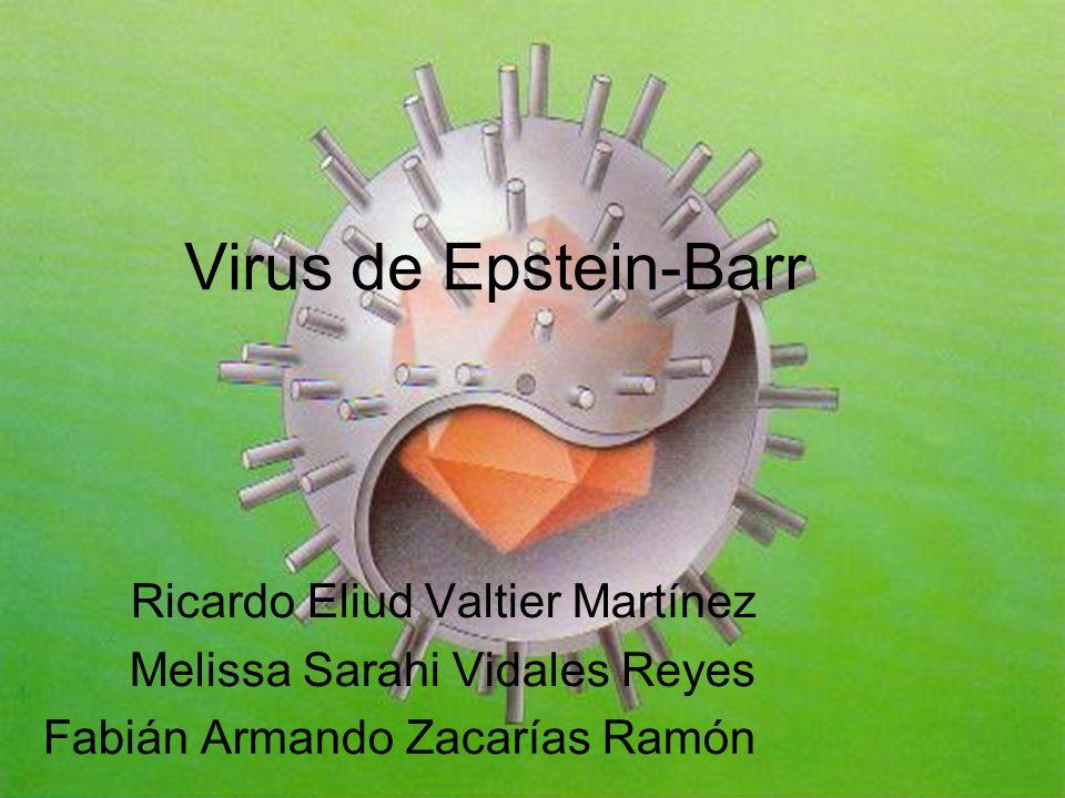 Virus de Epstein-Barr Ricardo Eliud Valtier Martínez