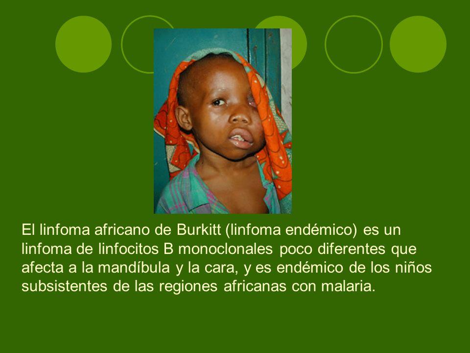 El linfoma africano de Burkitt (linfoma endémico) es un linfoma de linfocitos B monoclonales poco diferentes que afecta a la mandíbula y la cara, y es endémico de los niños subsistentes de las regiones africanas con malaria.