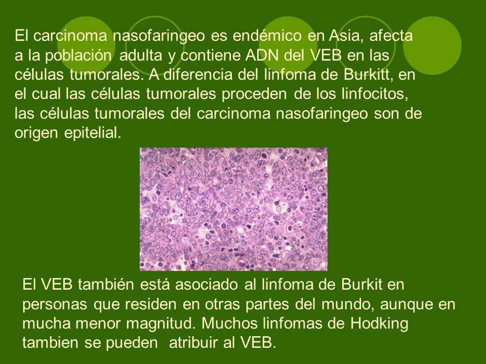 El carcinoma nasofaringeo es endémico en Asia, afecta a la población adulta y contiene ADN del VEB en las células tumorales. A diferencia del linfoma de Burkitt, en el cual las células tumorales proceden de los linfocitos, las células tumorales del carcinoma nasofaringeo son de origen epitelial.