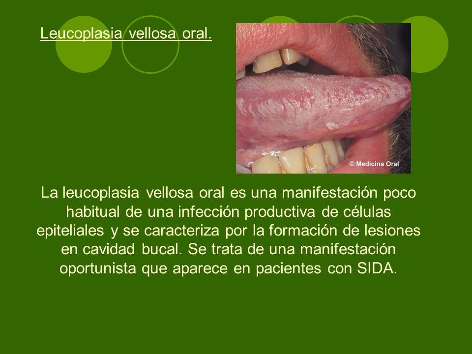 Leucoplasia vellosa oral.