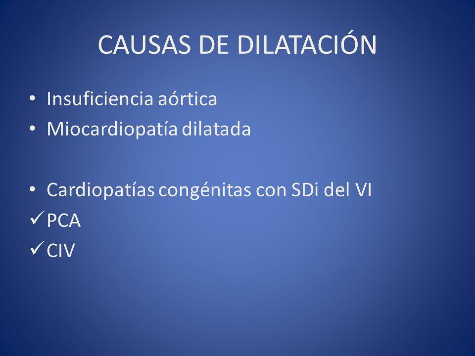 CAUSAS DE DILATACIÓN Insuficiencia aórtica Miocardiopatía dilatada
