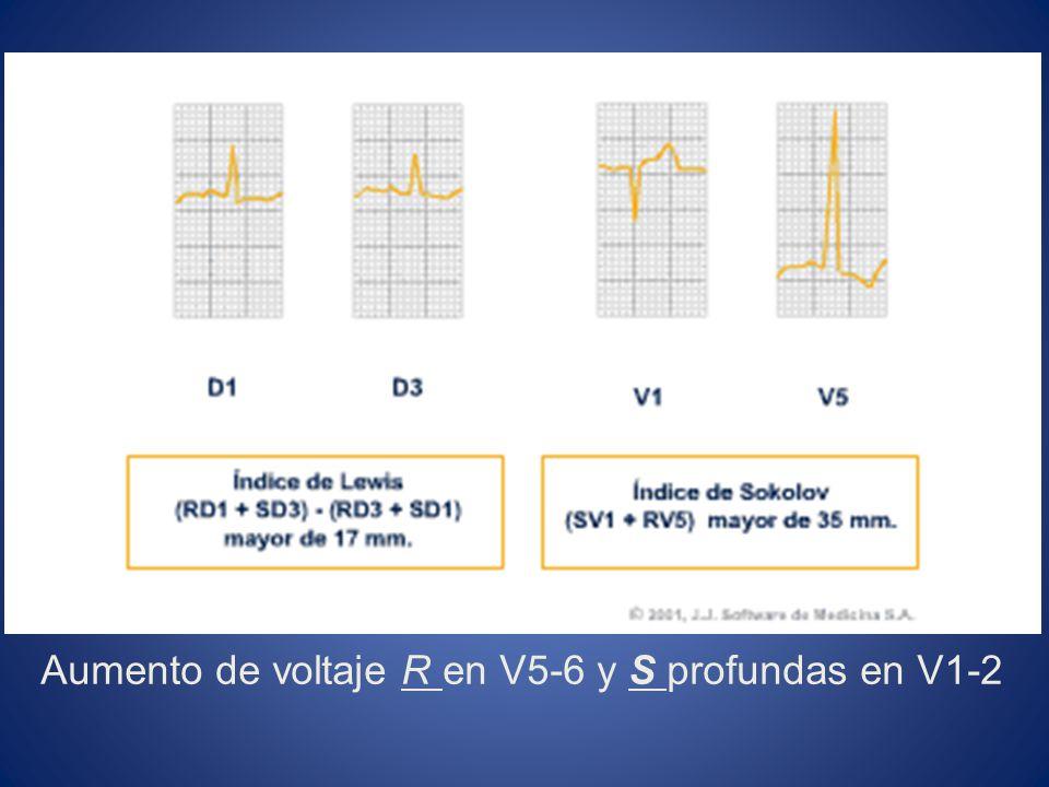 Aumento de voltaje R en V5-6 y S profundas en V1-2