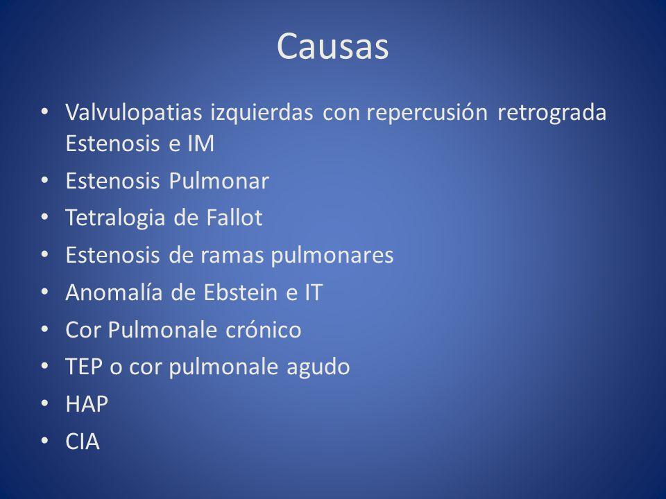 Causas Valvulopatias izquierdas con repercusión retrograda Estenosis e IM. Estenosis Pulmonar. Tetralogia de Fallot.